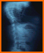 radiographic evaluation of scoliosis